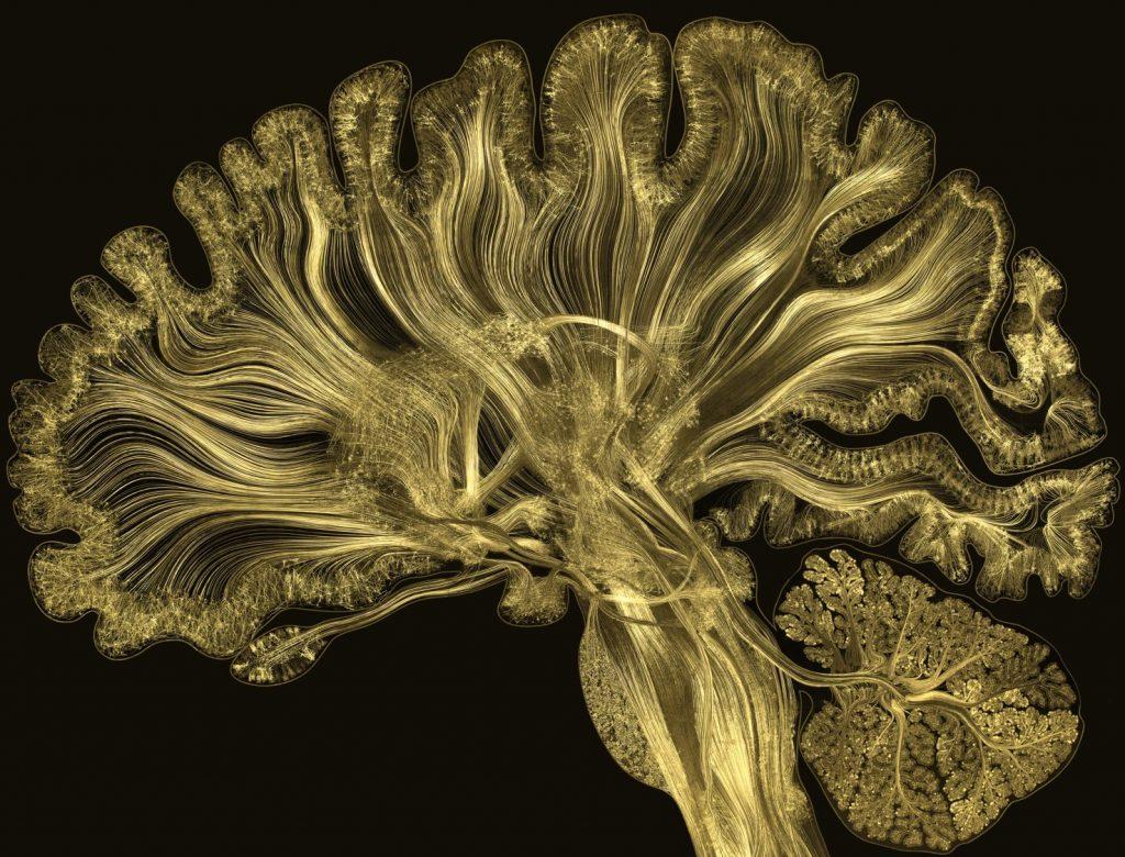 Cérebro (the brain)
